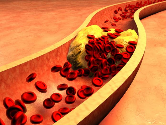 cholesterol jak się pozbyć skutecznie